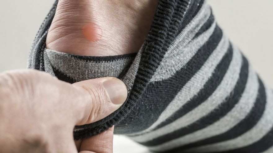 An in depth guide on Blister Prevention and Treatment