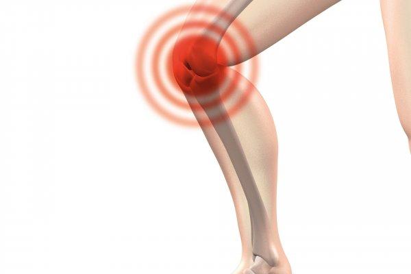 image of runners knee