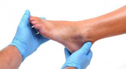 foot burisitis
