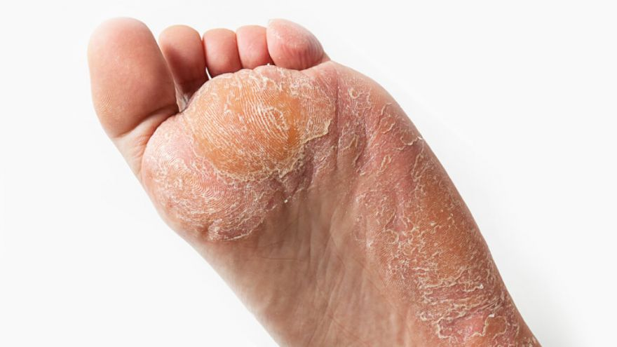 How to Get Rid of Hard Skin on Feet Quick