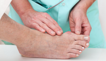 Home Remedies to Treat, Exercise, and Prevent Bunions