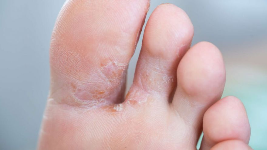 Why Do My Feet Itch at Night?